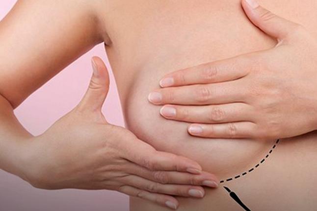 OMS: câncer de mama supera o de pulmão e já é o mais comum no mundo